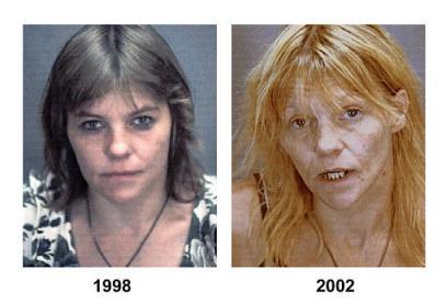 http://www.narkotyki.pl/gfx/narkotyki/pl/defaultgalerie/26/7/1/949471809.jpg