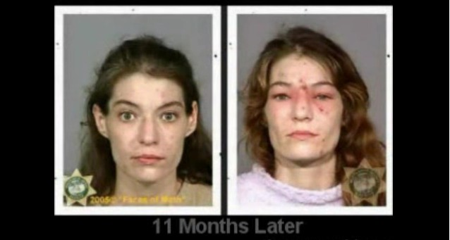 Drug abuse pictures...